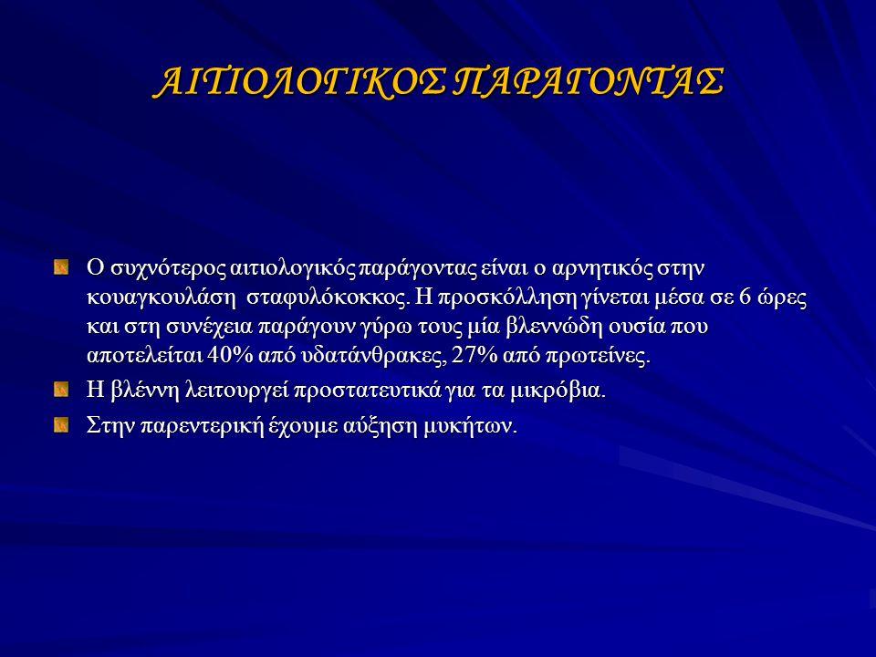 ΑΙΤΙΟΛΟΓΙΚΟΣ ΠΑΡΑΓΟΝΤΑΣ