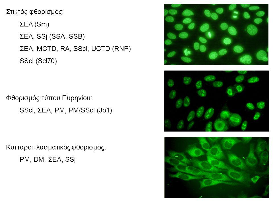 Στικτός φθορισμός: ΣΕΛ (Sm) ΣΕΛ, SSj (SSA, SSB) ΣΕΛ, ΜCTD, RΑ, SScl, UCTD (RNP) SScl (Scl70) Φθορισμός τύπου Πυρηνίου: