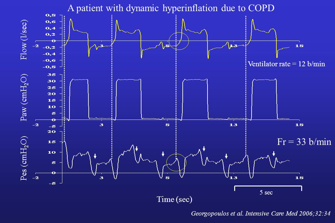 A patient with dynamic hyperinflation due to COPD