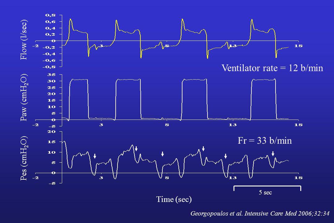 Ventilator rate = 12 b/min