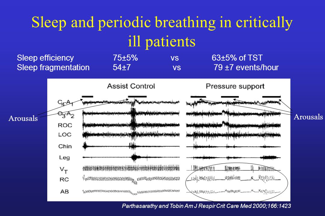 Sleep and periodic breathing in critically ill patients