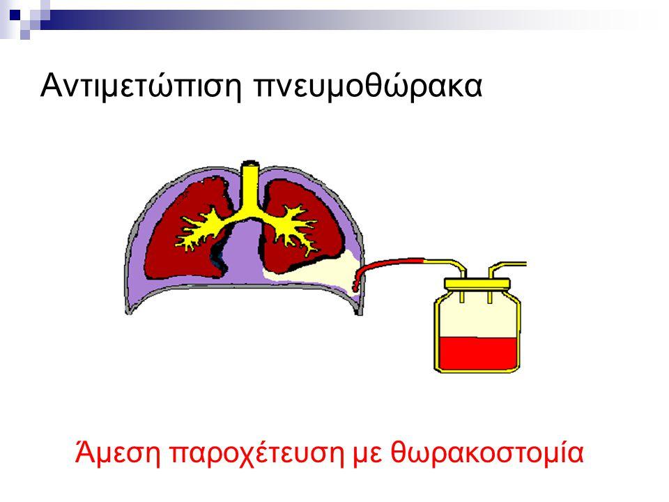 Αντιμετώπιση πνευμοθώρακα