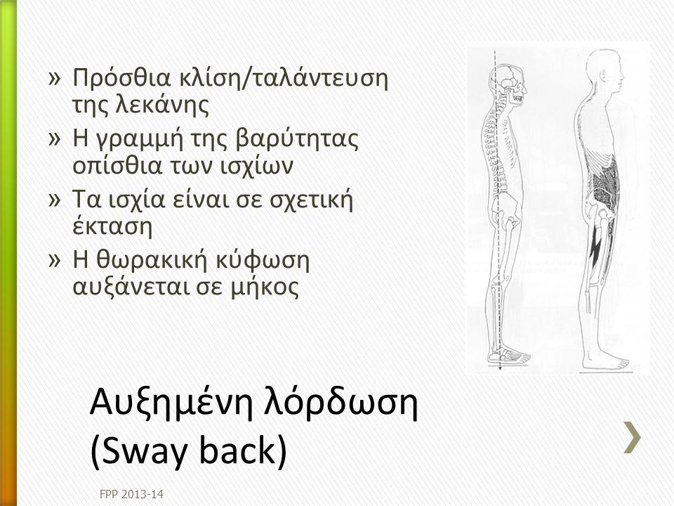 Aυξημένη λόρδωση (Sway back)
