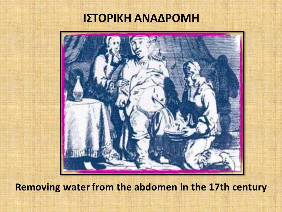Removing water from the abdomen in the 17th century