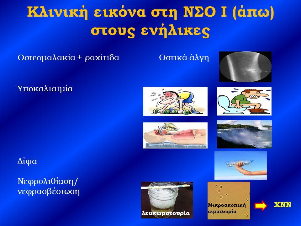 Κλινική εικόνα στη ΝΣΟ Ι (άπω) στους ενήλικες