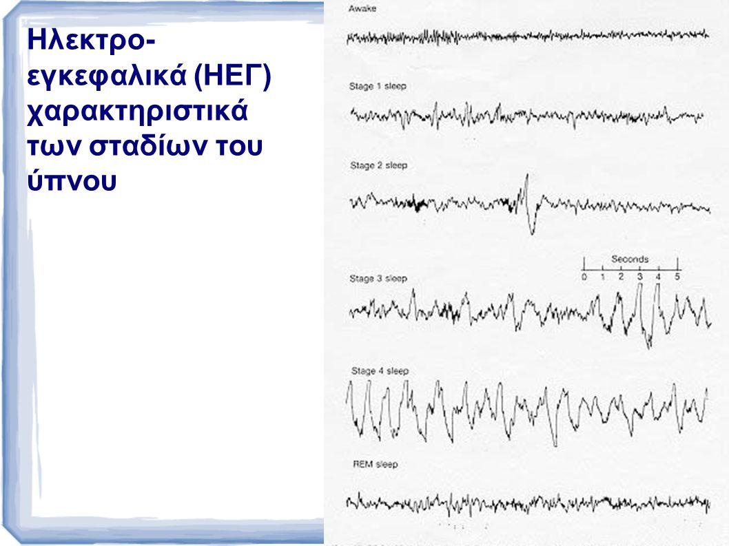 Ηλεκτρο-εγκεφαλικά (ΗΕΓ) χαρακτηριστικά των σταδίων του ύπνου