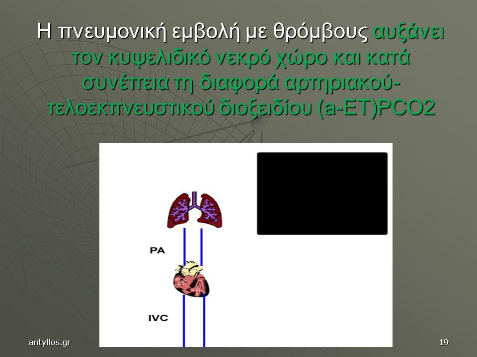 Η πνευμονική εμβολή με θρόμβους αυξάνει τον κυψελιδικό νεκρό χώρο και κατά συνέπεια τη διαφορά αρτηριακού-τελοεκπνευστικού διοξειδίου (a-ET)PCO2