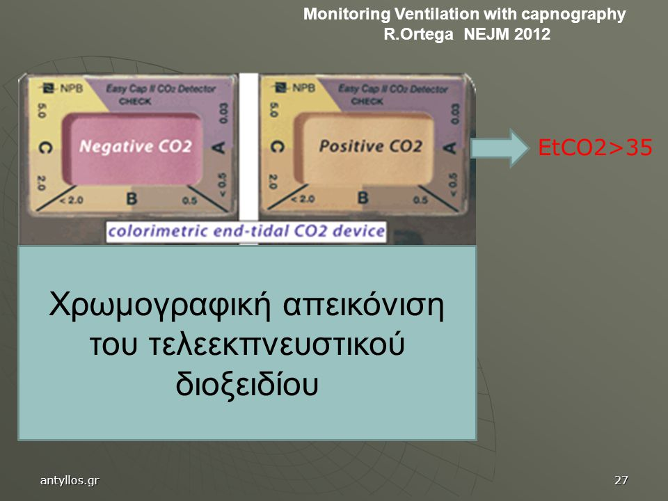 Monitoring Ventilation with capnography