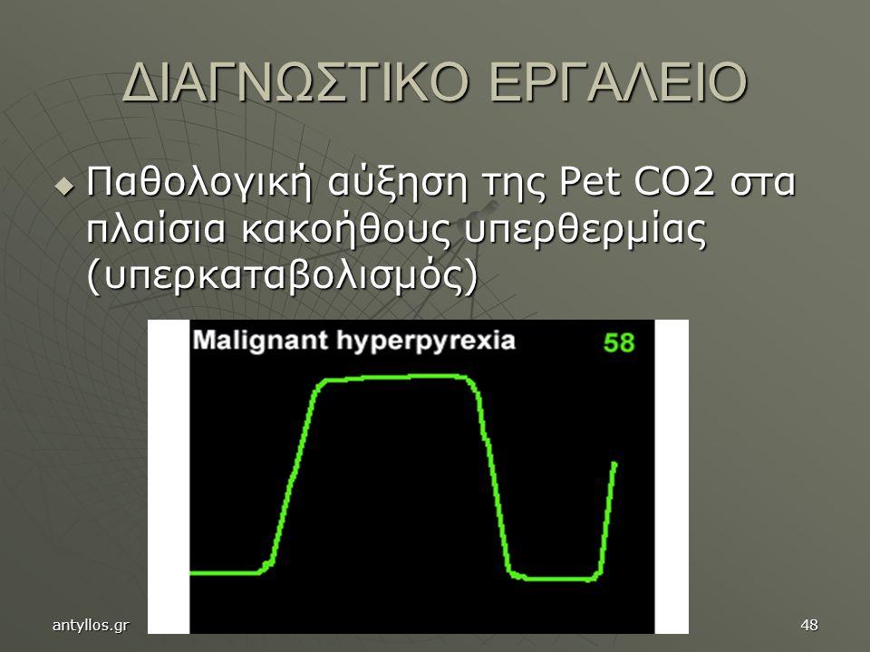 ΔΙΑΓΝΩΣΤΙΚΟ ΕΡΓΑΛΕΙΟ Παθολογική αύξηση της Pet CO2 στα πλαίσια κακοήθους υπερθερμίας (υπερκαταβολισμός)
