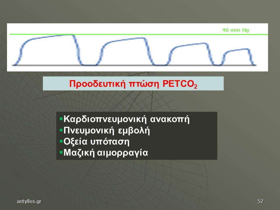 Προοδευτική πτώση PETCO2