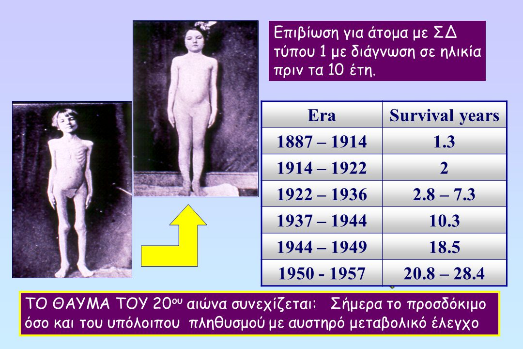 Era Survival years 1887 – 1914 1.3 1914 – 1922 2 1922 – 1936 2.8 – 7.3