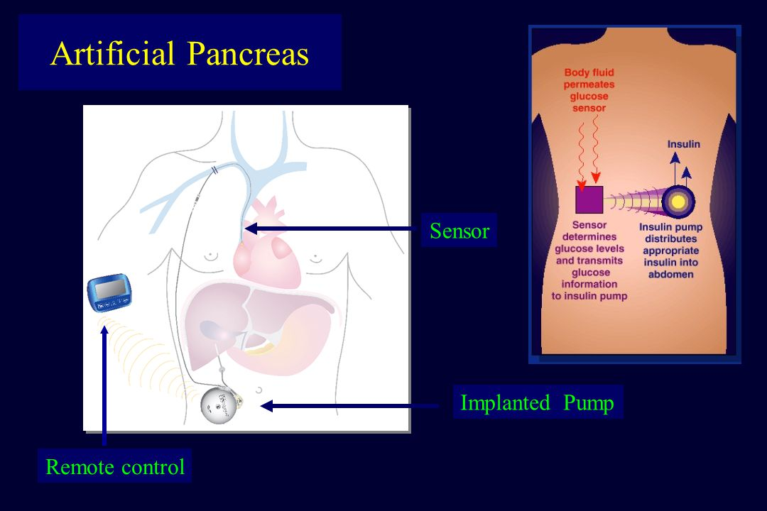 Artificial Pancreas Sensor Implanted Pump Remote control