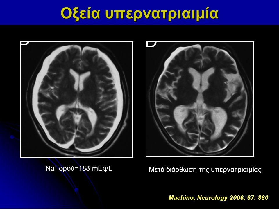 Οξεία υπερνατριαιμία Na+ ορού=188 mEq/L