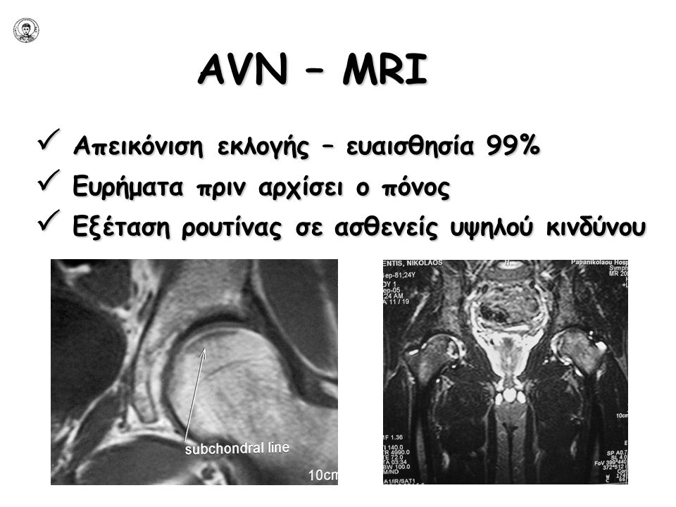 AVN – ΜRI  Απεικόνιση εκλογής – ευαισθησία 99%