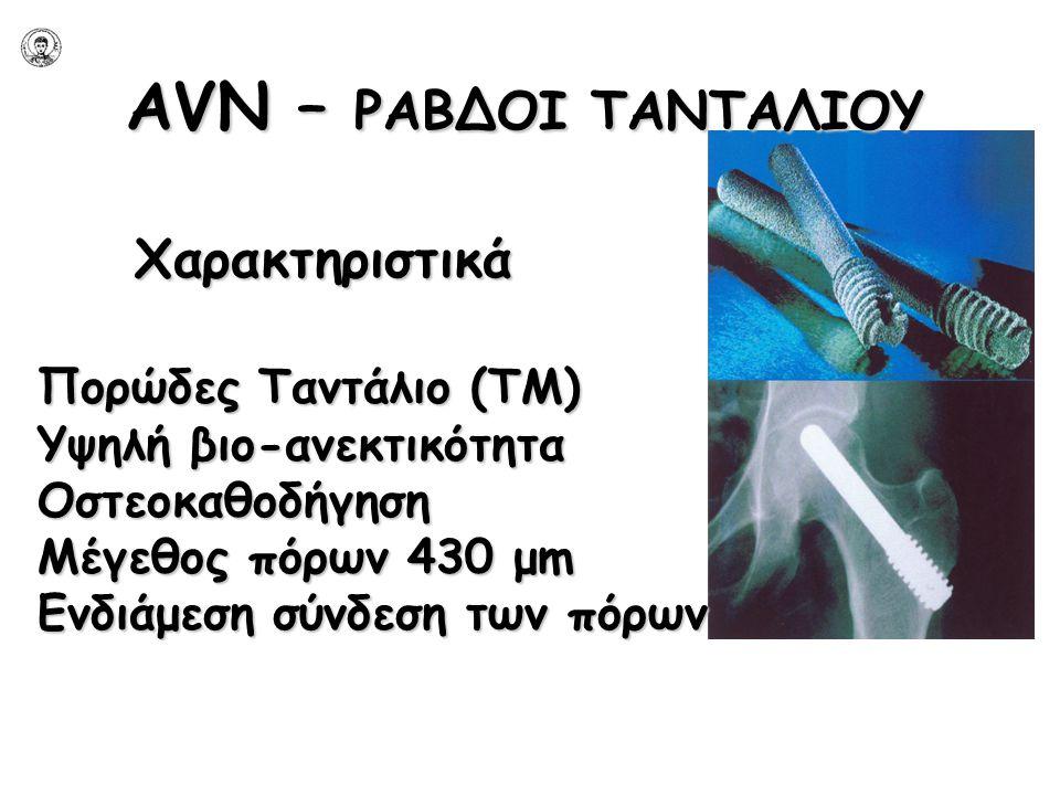 AVN – ΡΑΒΔΟΙ ΤΑΝΤΑΛΙΟΥ Χαρακτηριστικά Πορώδες Ταντάλιο (ΤΜ)