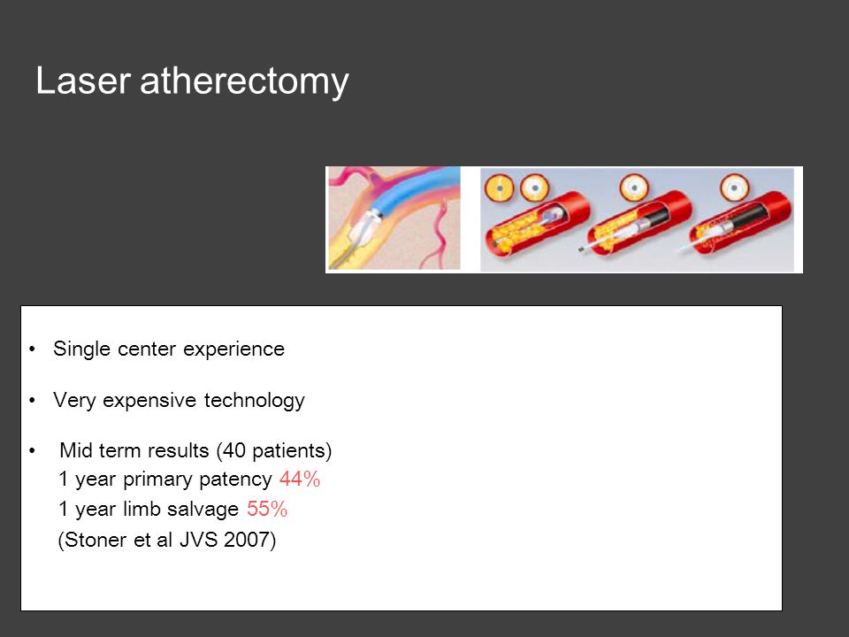 Laser atherectomy Single center experience Very expensive technology