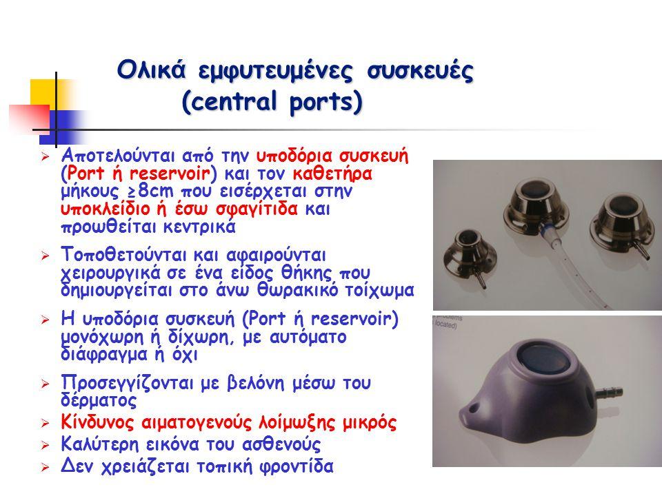 Ολικά εμφυτευμένες συσκευές (central ports)