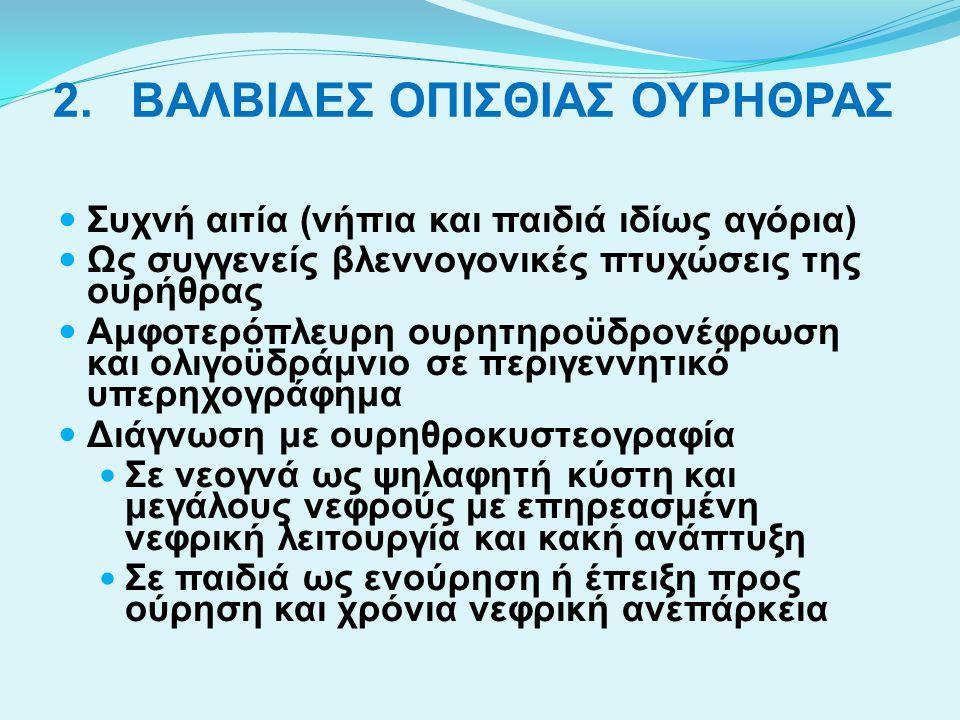 ΒΑΛΒΙΔΕΣ ΟΠΙΣΘΙΑΣ ΟΥΡΗΘΡΑΣ