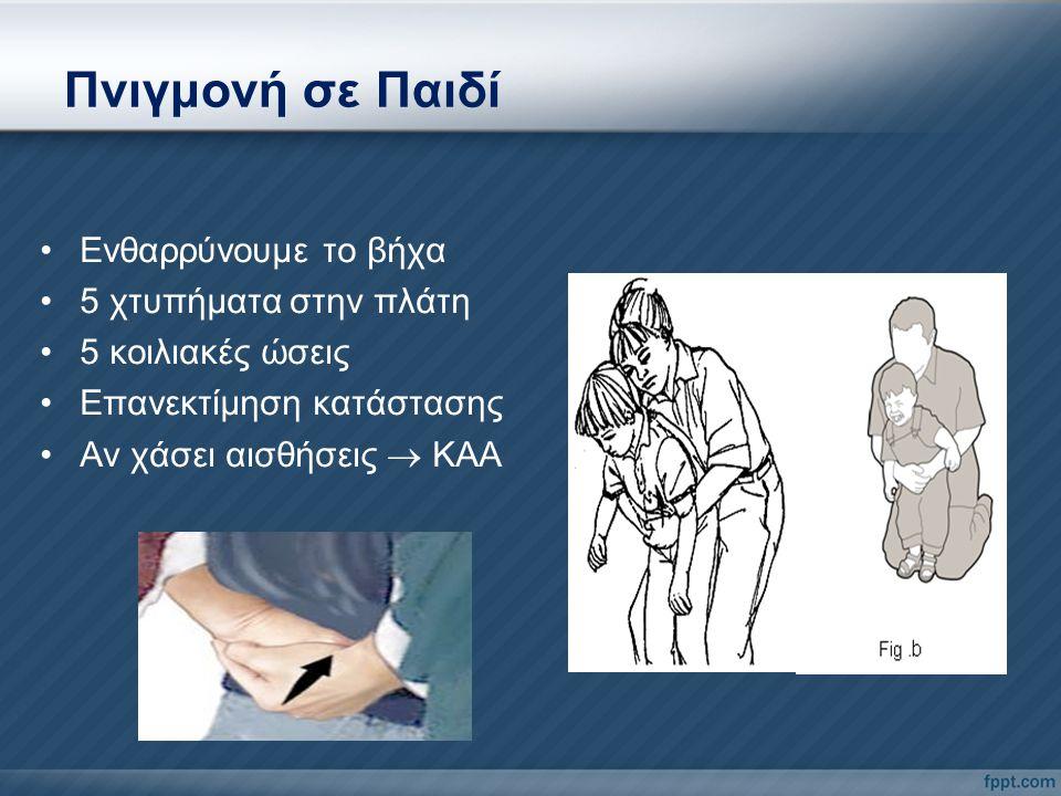 Πνιγμονή σε Παιδί Ενθαρρύνουμε το βήχα 5 χτυπήματα στην πλάτη