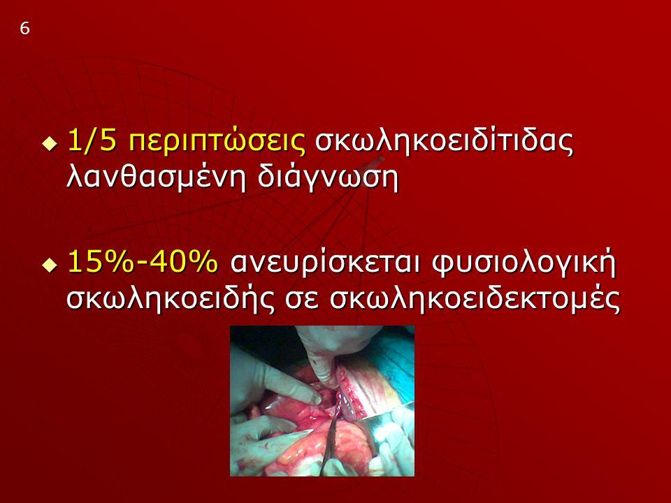 1/5 περιπτώσεις σκωληκοειδίτιδας λανθασμένη διάγνωση