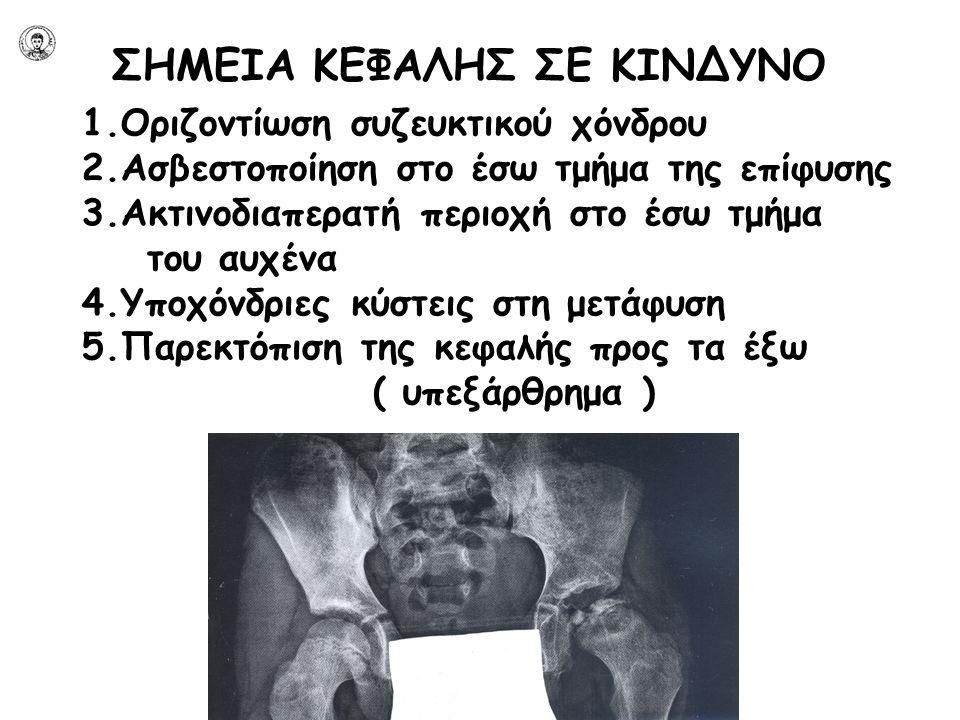ΣΗΜΕΙΑ ΚΕΦΑΛΗΣ ΣΕ ΚΙΝΔΥΝΟ