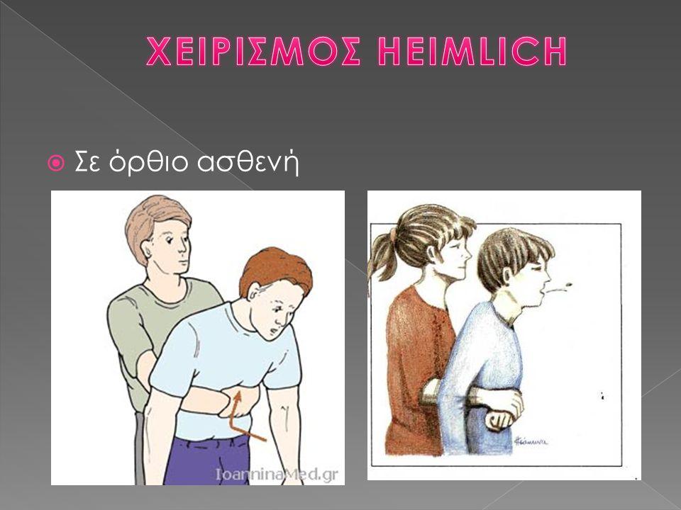 ΧΕΙΡΙΣΜΟΣ HEIMLICH Σε όρθιο ασθενή
