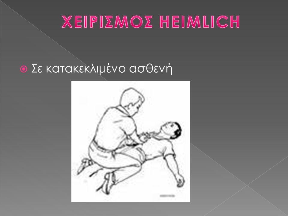 ΧΕΙΡΙΣΜΟΣ HEIMLICH Σε κατακεκλιμένο ασθενή