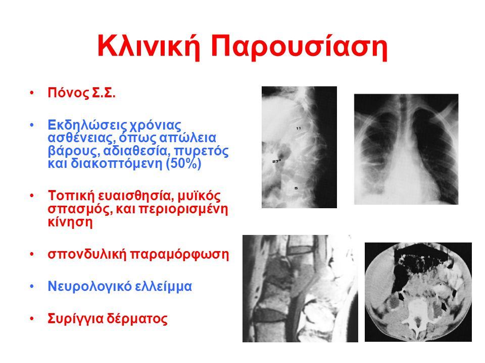 Κλινική Παρουσίαση Πόνος Σ.Σ.