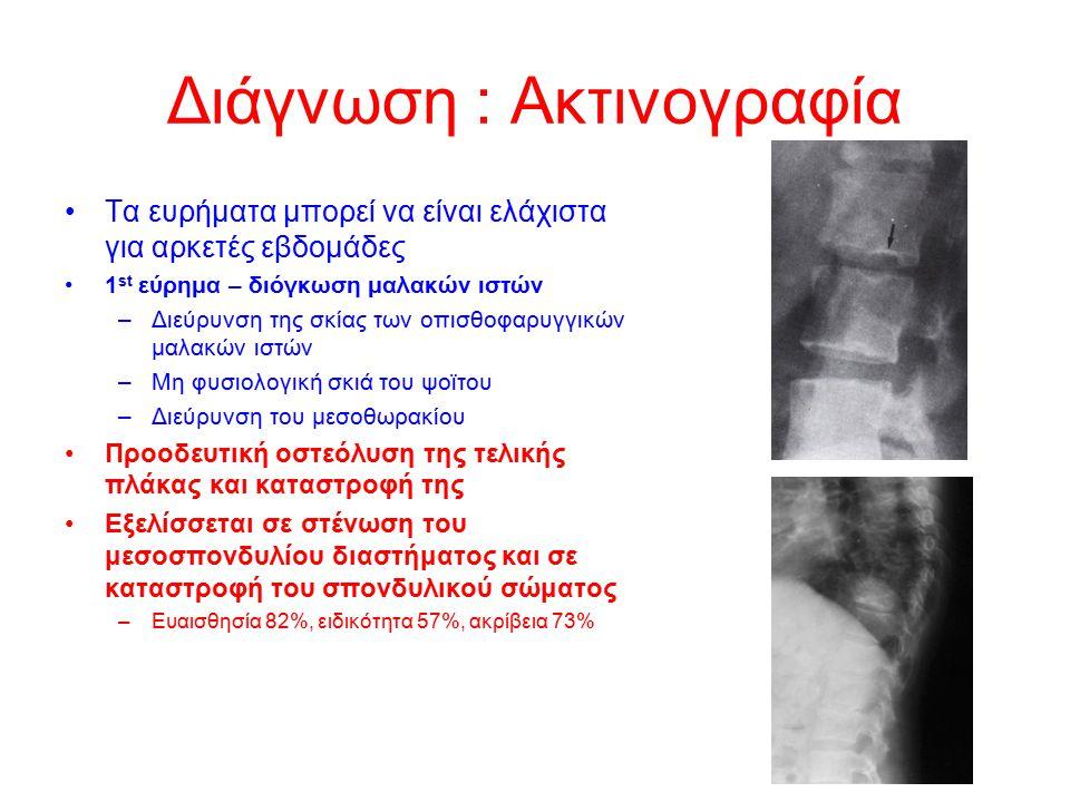 Διάγνωση : Ακτινογραφία