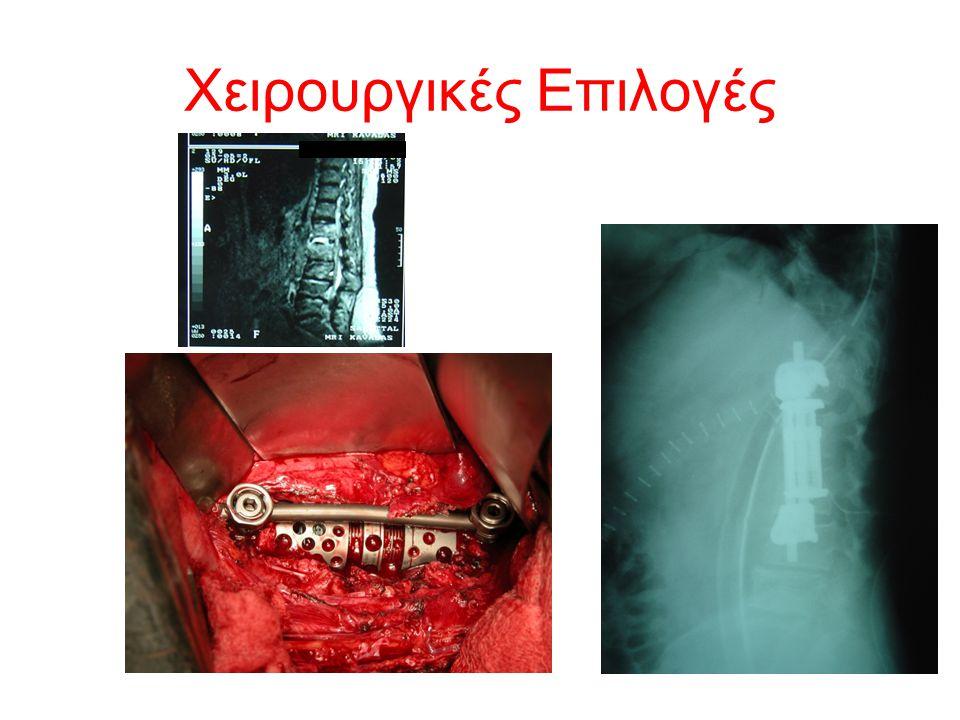 Χειρουργικές Επιλογές