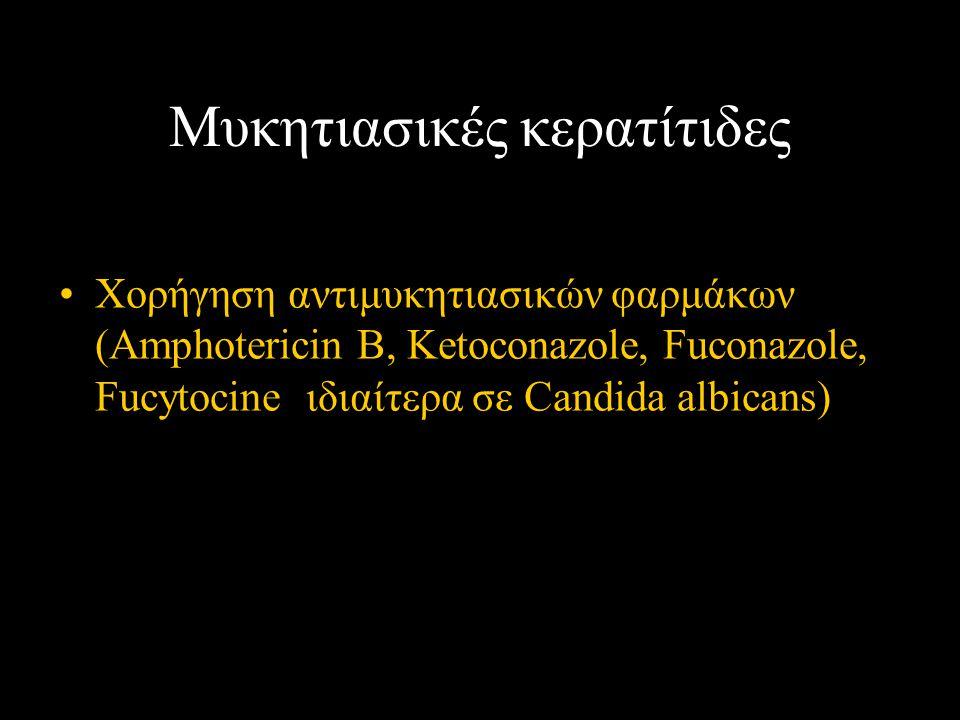 Μυκητιασικές κερατίτιδες