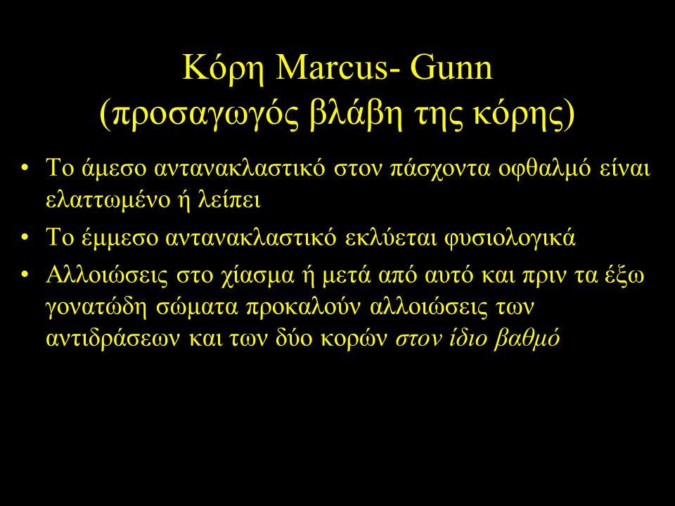 Κόρη Marcus- Gunn (προσαγωγός βλάβη της κόρης)