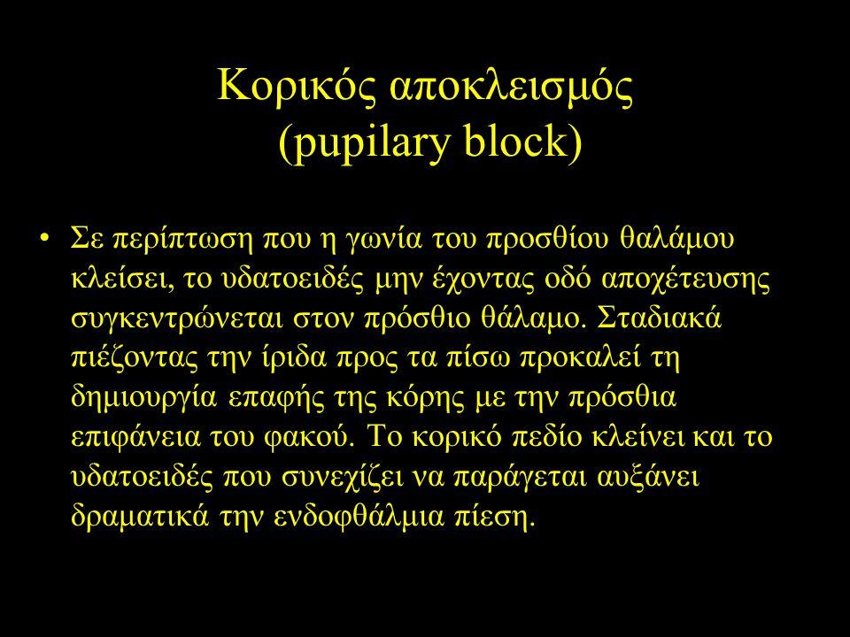 Κορικός αποκλεισμός (pupilary block)