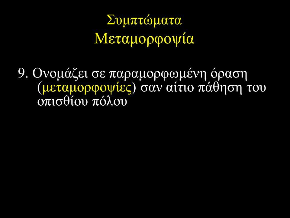 Συμπτώματα Μεταμορφοψία