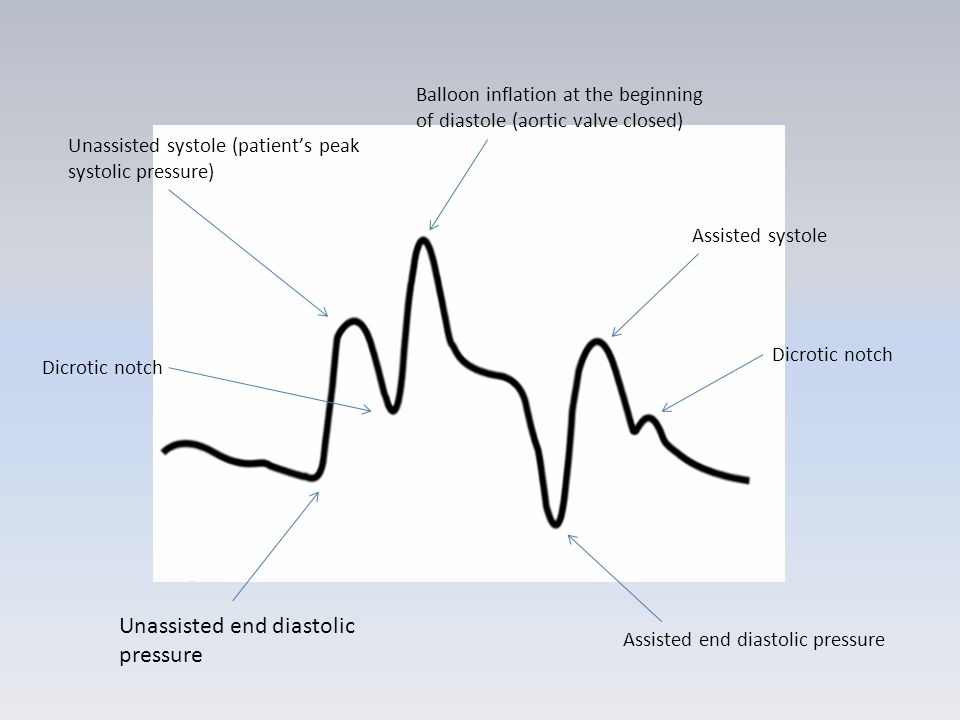 Unassisted end diastolic pressure