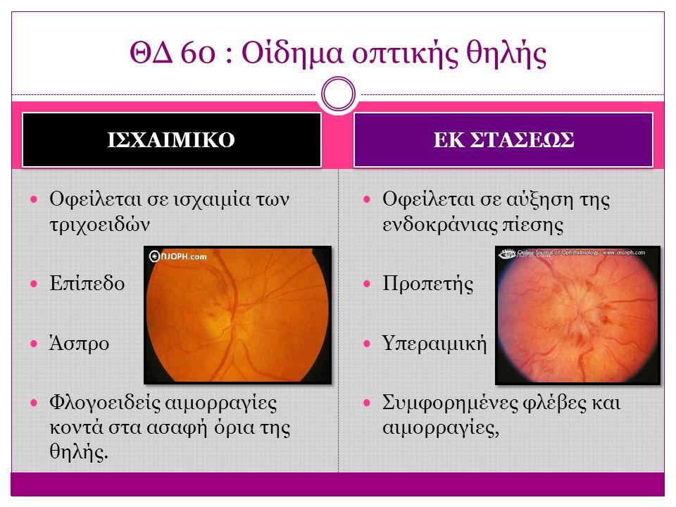 ΘΔ 60 : Οίδημα οπτικής θηλής