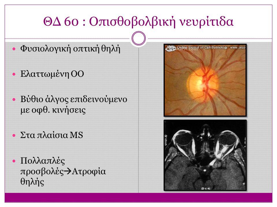 ΘΔ 60 : Οπισθοβολβική νευρίτιδα