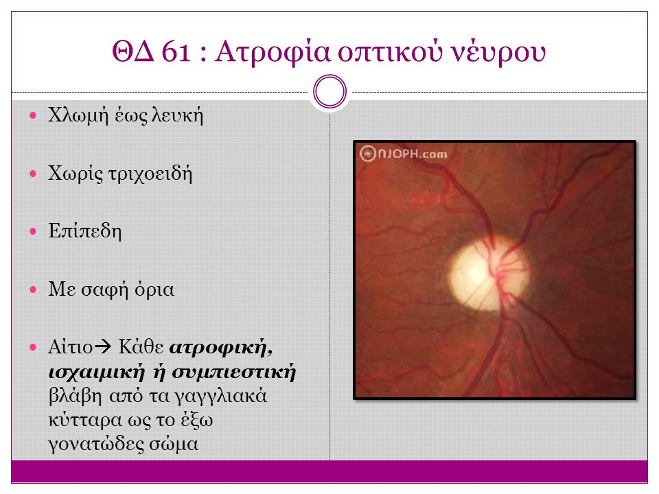ΘΔ 61 : Ατροφία οπτικού νέυρου