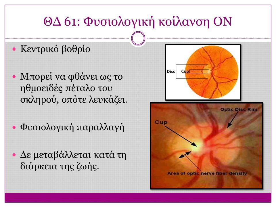 ΘΔ 61: Φυσιολογική κοίλανση ΟΝ