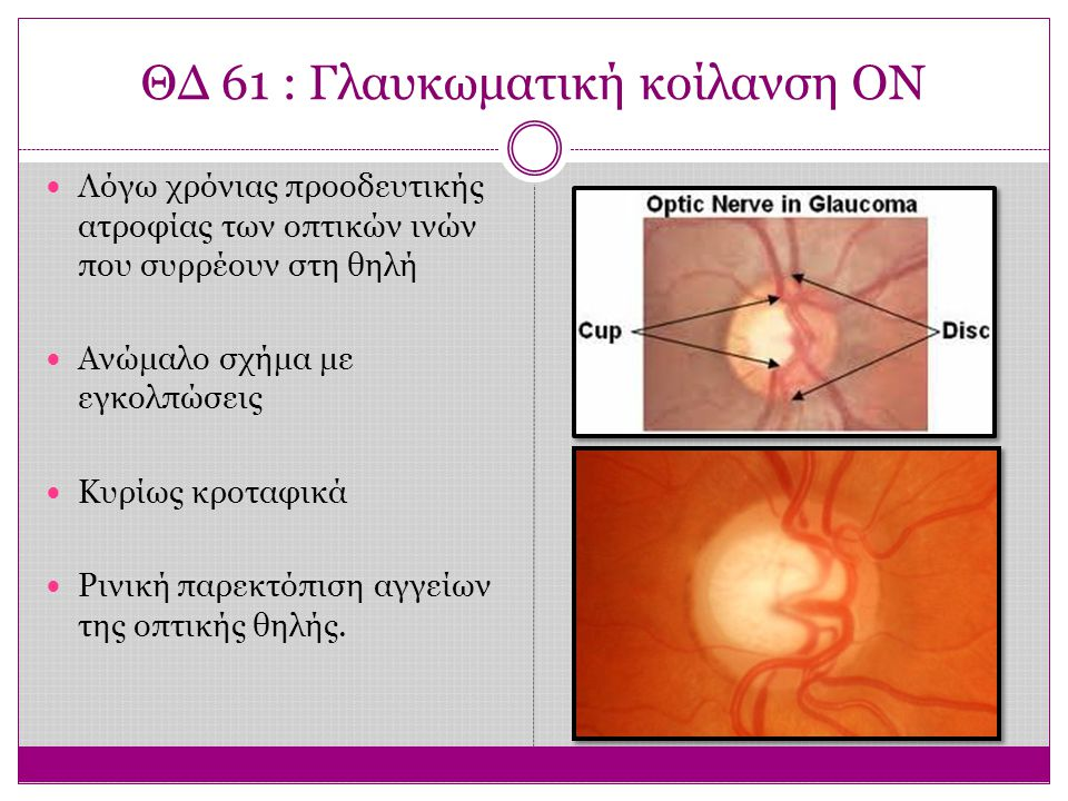 ΘΔ 61 : Γλαυκωματική κοίλανση ΟΝ