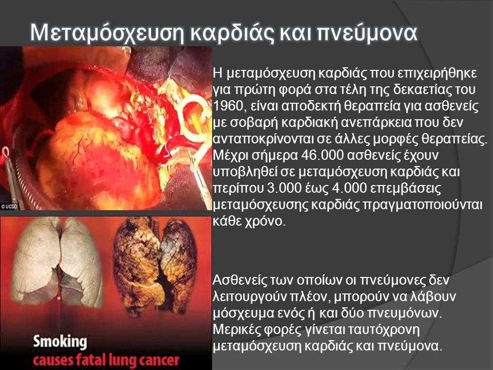 Μεταμόσχευση καρδιάς και πνεύμονα