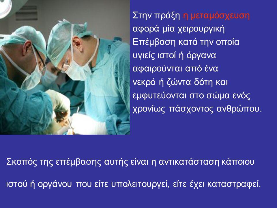 Στην πράξη η μεταμόσχευση