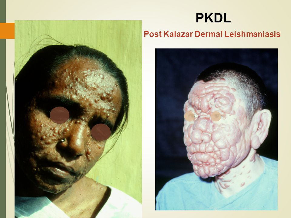 Post Kalazar Dermal Leishmaniasis