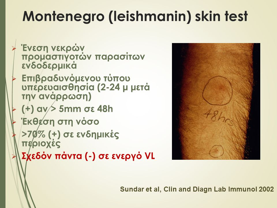 Montenegro (leishmanin) skin test