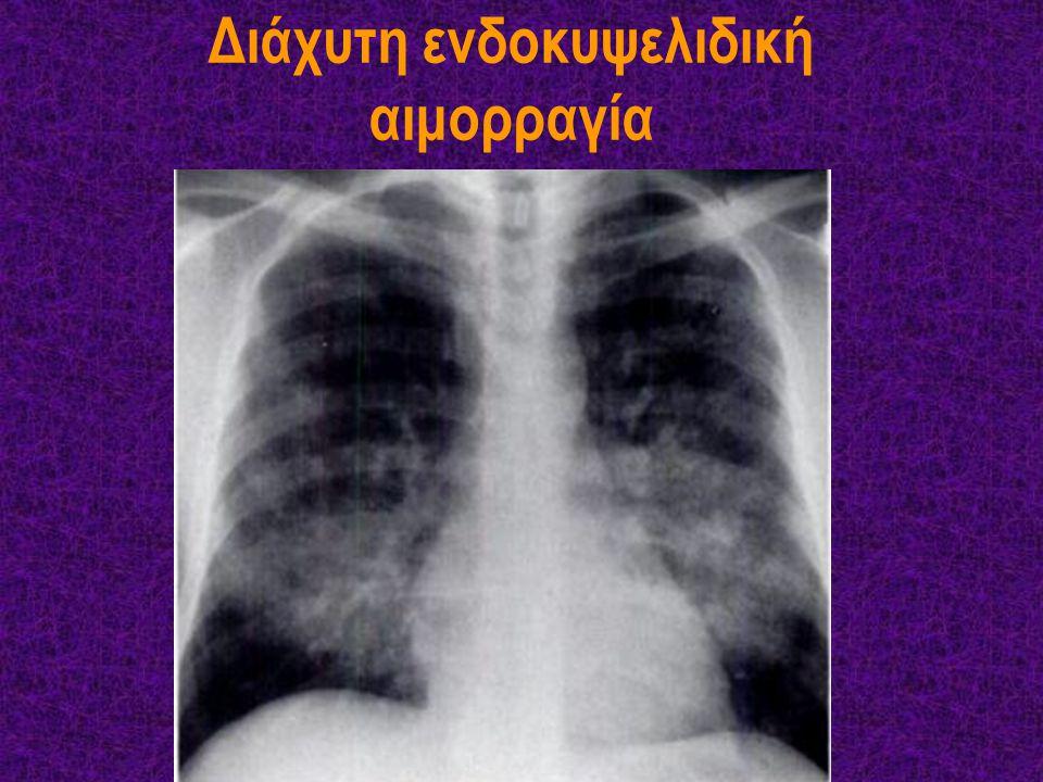 Διάχυτη ενδοκυψελιδική αιμορραγία