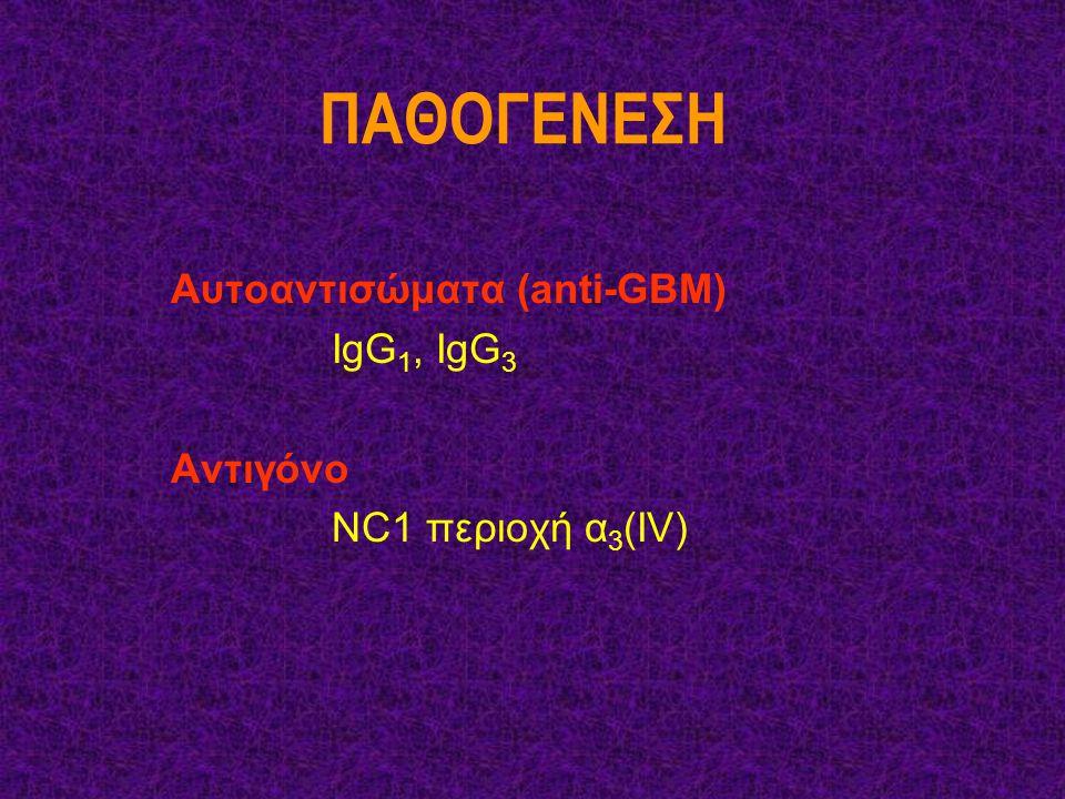 ΠΑΘΟΓΕΝΕΣΗ Αυτοαντισώματα (anti-GBM) IgG1, IgG3 Aντιγόνο
