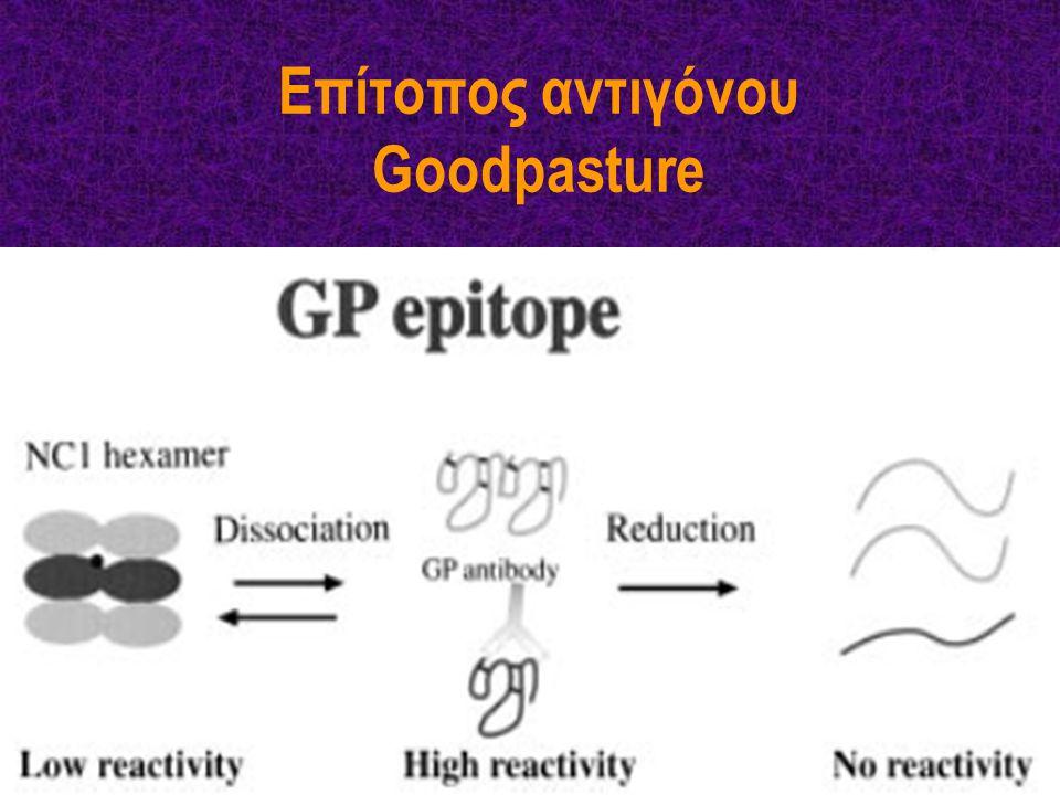 Επίτοπος αντιγόνου Goodpasture