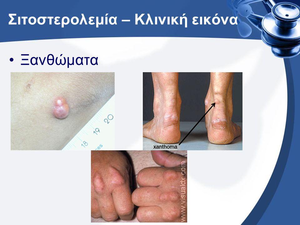 Σιτοστερολεμία – Κλινική εικόνα