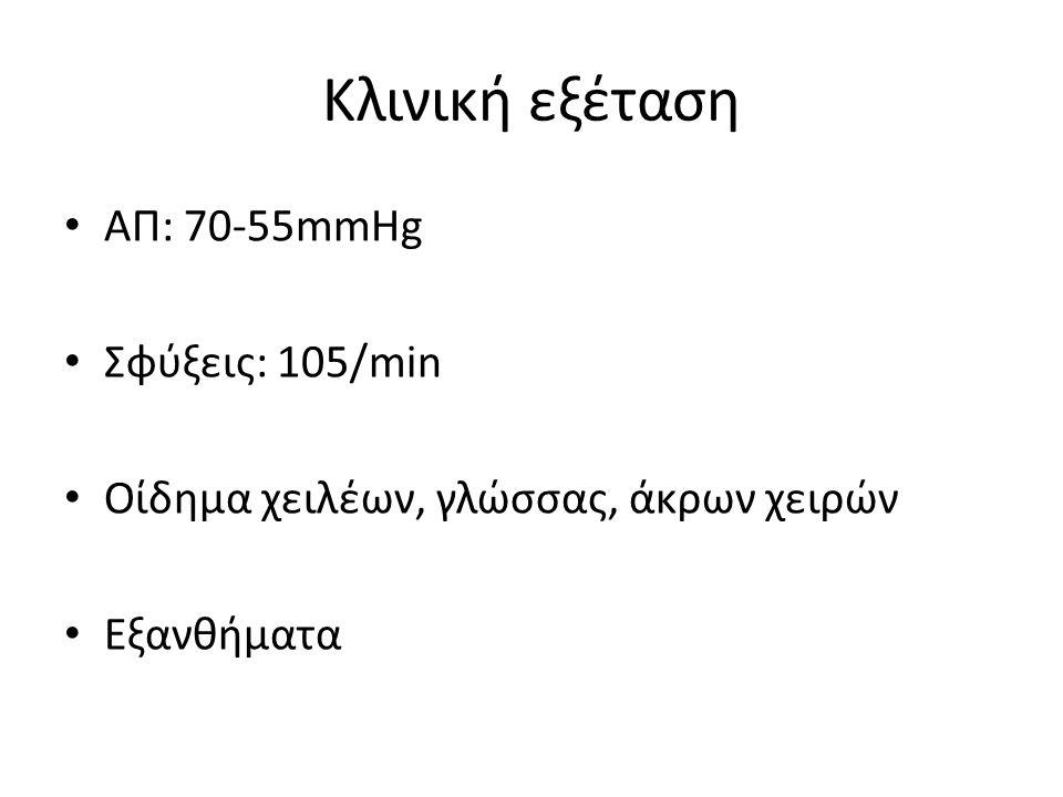 Κλινική εξέταση ΑΠ: 70-55mmHg Σφύξεις: 105/min
