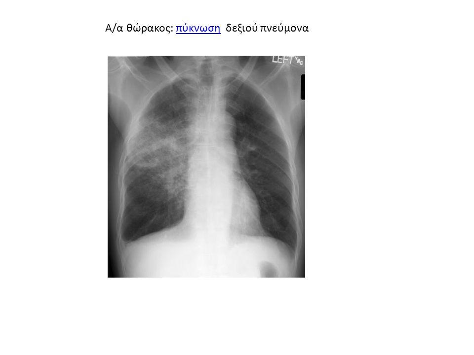 Α/α θώρακος: πύκνωση δεξιού πνεύμονα